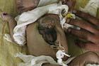 В Индии родилась девочка с сердцем и печенью наружу. Фото