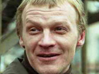 Известному актеру Серебрякову собака разорвала лицо. Пластическим хирургам пришлось собирать его по частям