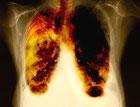 Английские ученые нашли лекарство от рака легких