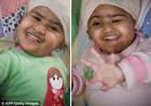 Австралийские хирурги провели сложнейшую операцию по разделению сиамских близнецов. Фото