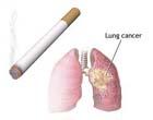 Ужас. Табак убивает по 300 украинцев в день
