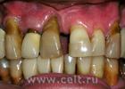 Описание: Раковая опухоль на слизистой оболочке десны нижней челюсти может.