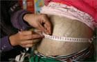 Врачи не могут понять, почему у 4-летней девочки из Китая вырос аномально большой живот. Фото