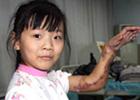 Чудеса китайской медицины. Чтобы сохранить руку девочке, хирурги пришили ее к ноге. Фото