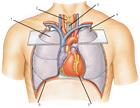 У холостяков больше шансов заработать инфаркт. И не только