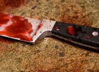 Суровый метод воспитания пьяных хулиганов применен на Волыни: раздеть, привязать к дереву, порезать ножом
