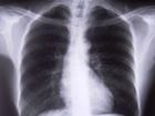 Флюорограф Ахметова «поймал» в Киеве восьмерых туберкулезников. А сколько их еще бродит по столице?