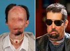 Медицина творит чудеса. Американец с пересаженным лицом вышел в люди. Фото
