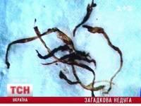 Агрессивная болезнь атакует украинцев. Зараза уродует людей и заставляет раздирать свое тело до крови. Видео