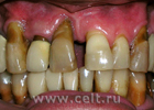 Кариесу конец. Башковитые британские ученые заставили зубную эмаль восстанавливаться