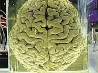 Ученые, поковырявшись в мозгу Эйнштейна, раскрыли его тайны