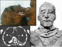 Итальянские ученые разгадали тайну убийства фараона Рамзеса III