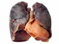 Если вы – заядлый курильщик, то это еще не значит, то ваши легкие не смогут пересадить кому-то другому