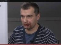 Избитые в центре Киева журналисты утверждают, что «титушки» вместе с ними избили двух милиционеров, пытавшихся помочь