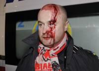 Фотографии разгона Евромайдана: палачи и жертвы