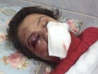 Бандиты жестоко избили журналистку Татьяну Чорновол