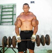 Вот что может произойти, если культурист слегка перестарается с наращиванием мышечной массы