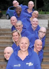 В Британии 12 лысых женщин снялись для календаря, чтобы побороть стереотипы