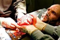 Черные трансплантологи продавали нищих украинцев на органы. В страны Азии и Латинской Америки