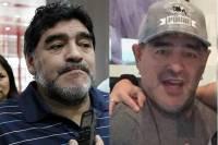 СМИ заподозрили Марадону в... подтяжке лица