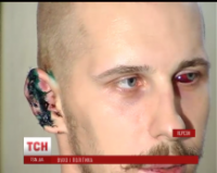 Тайсон отдыхает: депутат от «Оппоблока» откусил ухо главе херсонского «Азова»