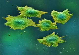 Ультразвук разрушает раковые клетки. Как выяснили ученые, особенно эффективны нелинейные звуковые волны