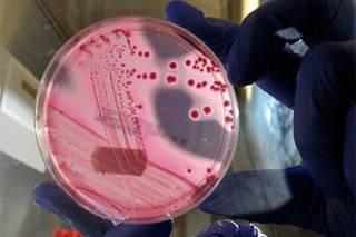Всемирная организация здравоохранения определила дюжину самых опасных для человека бактерий