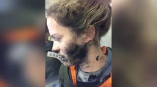У одной из пассажирок авиарейса «Мельбурн – Пекин» во время полета взорвались наушники