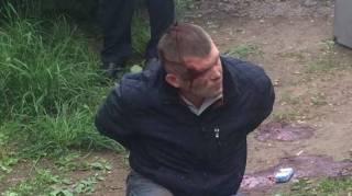 Охранника Яроша, который подстрелил таксиста в Каменском, с тяжелыми травмами перевели в реанимацию