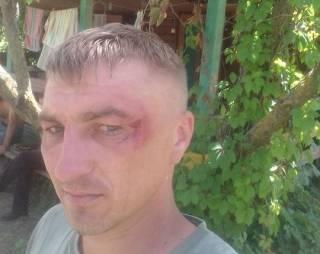 Отдыхая на Херсонщине, полицейские из Днепра жестоко избили ветеранов АТО на глазах у детей