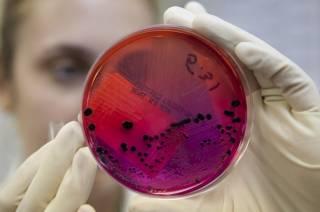 Ученые обнаружили новый потенциально смертоносный штамм сибирской язвы