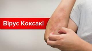 В сумскую больницу обратились несколько человек с признаками вируса Коксаки, — СМИ