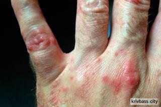 В Кривом Роге 14 человек попали в больницу с вирусом Коксаки