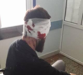 В Харькове жестоко избили депутата-антикоррупционера. Возможно, из-за публикаций о Добкине и Кернесе