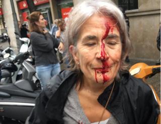 Референдум в Каталонии: количество пострадавших превысило 300 человек