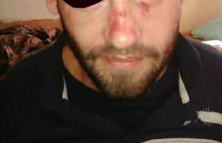 В украинском СИЗО заключенный перерезал себе горло и живот, протестуя против избиения нацгвардейцами