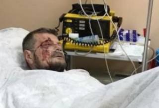 #Темадня: Cоцсети и эксперты отреагировали на взрыв в Киеве и ранение Мосийчука