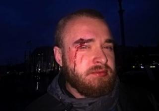 В центре Киева продавцы сине-желтых лент избили бойца АТО