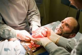 УГКЦ, глава Минздрава и депутаты лоббируют тему трансплантации органов украинцев