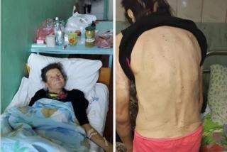В Одесской области скончалась женщина, которая 13 лет была в рабстве у цыган