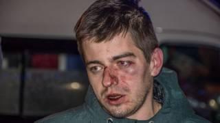 Сотрудники пиццерии жестоко избили клиентов в самом центре Киева