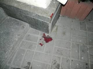 В центре Киева подростки избили и ограбили случайного прохожего