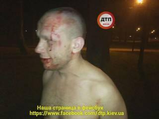 В Киеве пьяный атошник во время драки бросил под ноги людям гранату