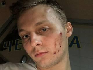 Сына оппозиционера Шуфрича избили в киевском ресторане «работники органов»