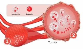 Американские химики нашли способ лечить рак... мышьяком