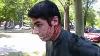 В Одессе порезали ножом известного активиста