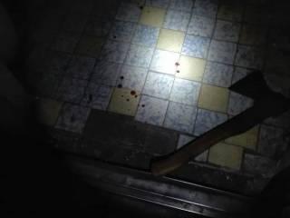В Ирпене стаффордширский терьер отгрыз матери своего хозяина кисти рук
