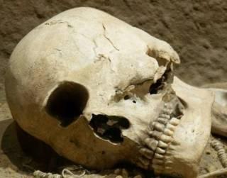 Мастерство древних хирургов-инков удивило исследователей