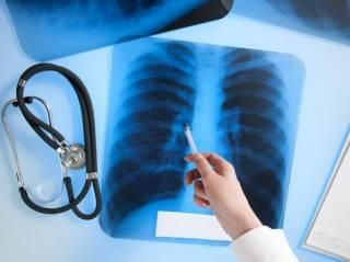 Супрун признала эпидемию туберкулеза в Украине. Каждый четвертый случай не поддается лечению