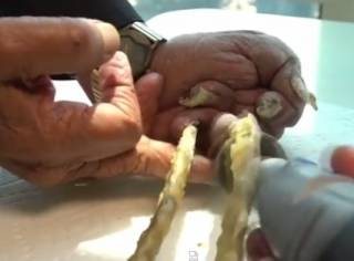 Житель Индии срезал ногти, которые отращивал 66 лет